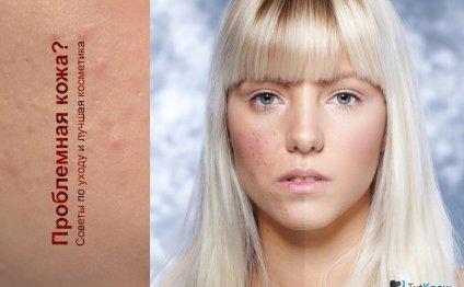 Проблемная кожа: как ухаживать